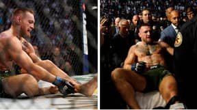 Conor McGregor Undergoes 'Successful' Surgery After Breaking Leg At UFC 264