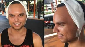 The Moment Muay Thai Boxer Suffered Skull Fracture During Fight