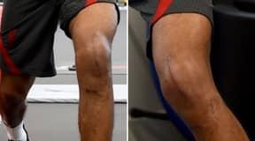 Liverpool Defender Joe Gomez Shows Off Massive Knee Scar Post-Surgery