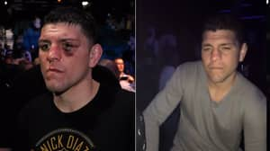 The Time Nick Diaz Destroyed Nightclub Thug With 'Elbows' And 'Knees'