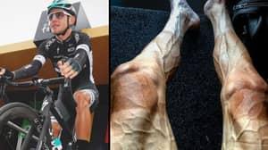 Tour De France Cyclist Shares Shocking Photo Of His Legs
