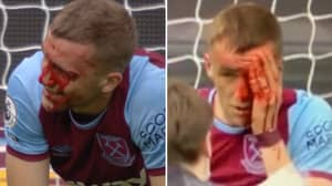 Tomas Soucek Involved In Nasty Collision, Smiles And Carries On Like An Absolute Warrior