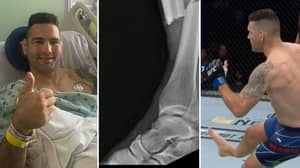 UFC Fighter Chris Weidman Posts Horrific Pre-Surgery X-Ray Images Of Double Leg Break Suffered At UFC 261