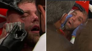 Billy Joe Saunders Will Be Out For A 'Long, Long Time' After Busted Eye Socket Injury