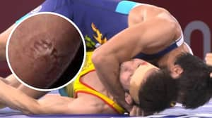 Olympic Wrestler Left With Huge Teeth Marks On Bicep After Being Bitten By Rival