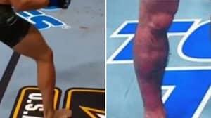 The Moment Conor McGregor's Leg Buckled Vs Dustin Poirier