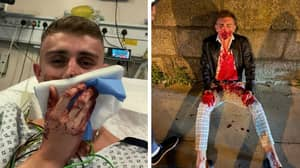 Olympian Jack Woolley Left Bloodied And Needing Surgery After Violent Gang Attack