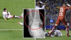 LDU Quito Player Christian Cruz Breaks His Tibia, Fibula And Ankle In Horror Injury