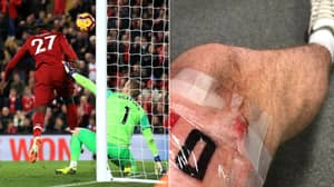 Liverpool Fan Gets Massive Divock Origi Tattoo After 95th Minute Winner vs. Everton