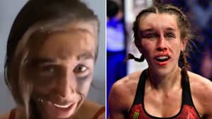 Joanna Jedrzejczyk Releases Video Showing Her 'Many Bruises' After Horrific Injury Vs Zhang Weili