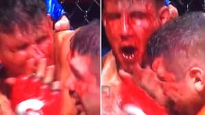 Frank Mir Left In A Bloody Mess After Losing Gumshield, Teeth And The Fight