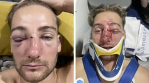 Local Aussie Rules Player Shows Off Face Injuries After One-Punch Attack