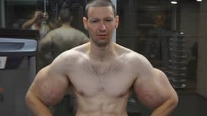 'Russian Popeye' Undergoes Surgery To Remove Petroleum Jelly From Fake Biceps