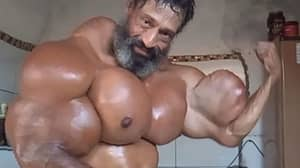 Brazilian Bodybuilder Injects Oil Into His Muscles