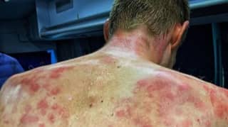 Cyclist Shows Off Bruised And Battered Back After Riding Through Hailstorm