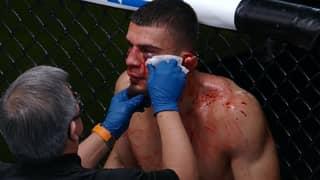 UFC Fighter Ramiz Brahimaj's Ear Left Hanging By A Thread After Brutal Elbow
