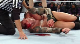 WATCH: Brock Lesnar Leaves Randy Orton A Bloody Mess At SummerSlam
