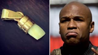 Boxer Who' Knocked Floyd Mayweather's Tooth Out' Now Wears It Round His Neck