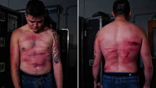 Rey Mysterio's Son Dominik Shows Off Gruesome Injuries Caused By Seth Rollins