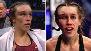 Shocking First Images Of Joanna Jedrzejczyk's Face Emerge One Week After UFC 248 Injury