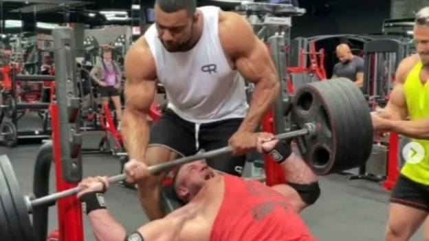 Bodybuilder Who Went Viral For Tearing His Pec Off The Bone Provides Positive Update