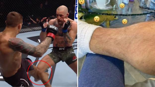 Conor McGregor's Leg Is Still Seriously Messed Up After Those Dustin Poirier Kicks