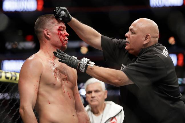 Diaz was cut badly during the fight. Image: PA Images