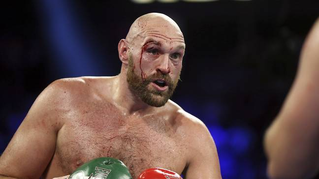 Tyson Fury could need plastic surgery to help heal his deep cuts