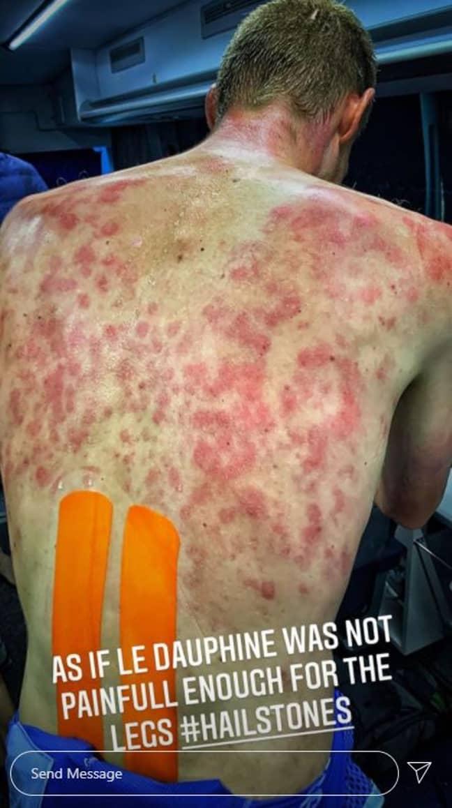 Tim Declercq showed off his bruised body. Credit: Instagram