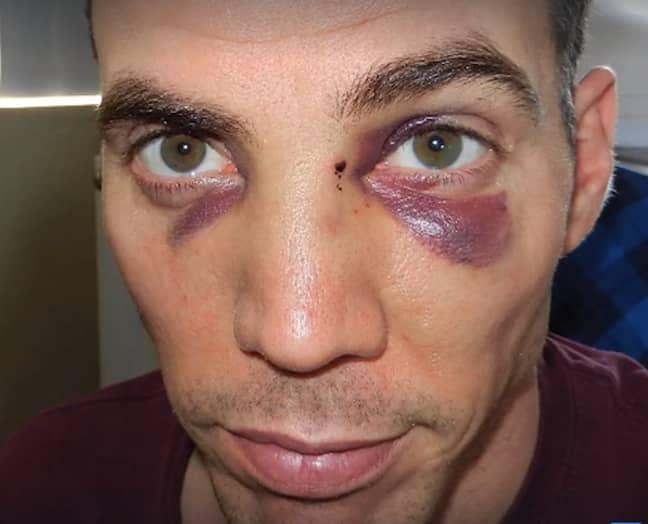 Steve-O the morning after Tyson had broken his nose. (Image Credit: Steve-O: Facebook)