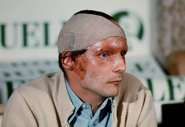 Lauda's severe facial burns following the incident. Credit: PA