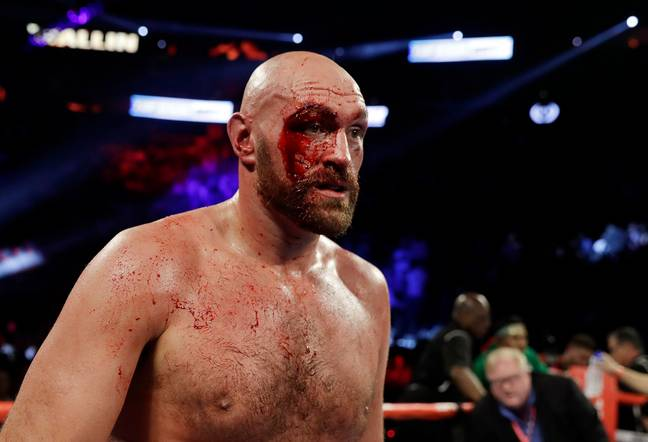 Tyson Fury suffered a huge cut above his right eye against Otto Wallin