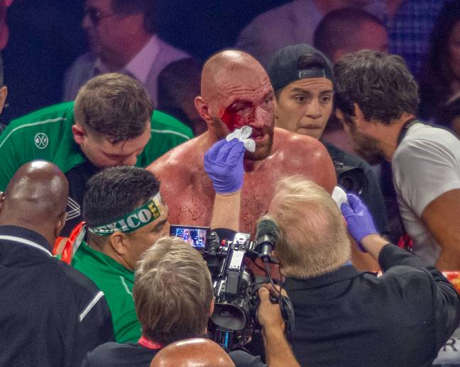 Fury's nasty cut after beating Wallin. Image: PA Images
