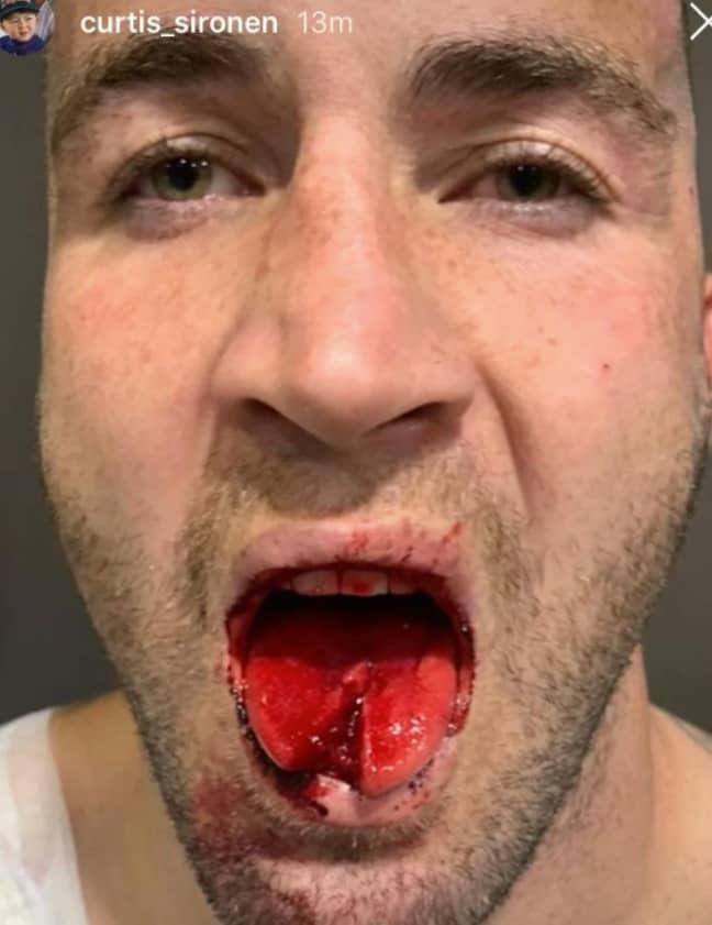 Joel Thompson's tongue. Credit: Instagram / Curtis Sironen