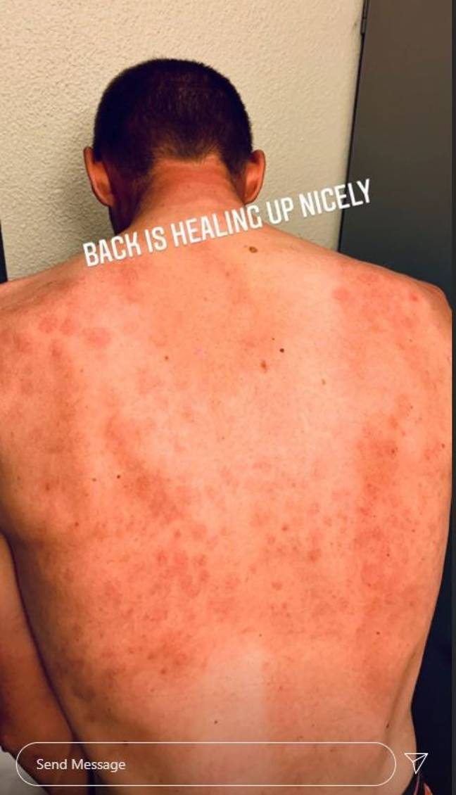 Tim Declercq showed off his bruises. Credit: Instagram