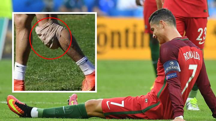 The Condition Cristiano Ronaldo Was Diagnosed With In 2014 That Has No Cure And Gets Worse Over Time