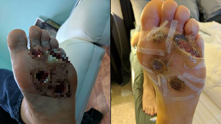 This Is Why You Should NEVER Shower Barefoot In The Gym