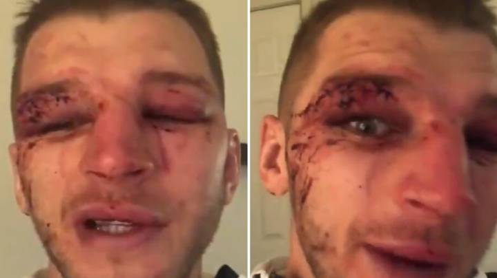 Dan Hooker's Face Was An Absolute Mess After Five Round War With Dustin Poirier
