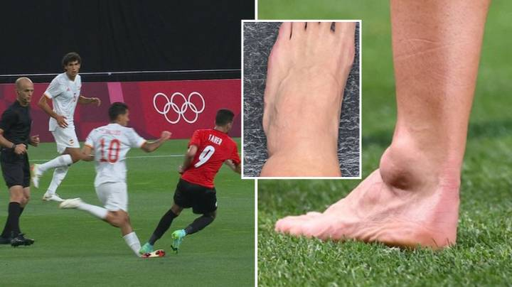 Dani Ceballos Suffers Brutal Ankle Injury After Being Trod On In Olympics Opener