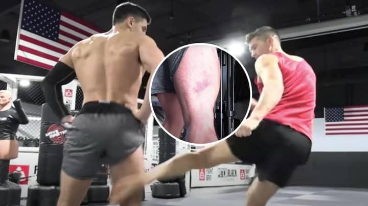 YouTuber's Hamstring Turns Blue After Brutal Leg Kicks From UFC Fighter