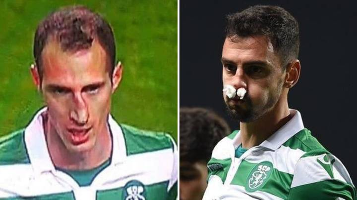 André Pinto And Radosav Petrovic Both Break Their Noses Against Porto