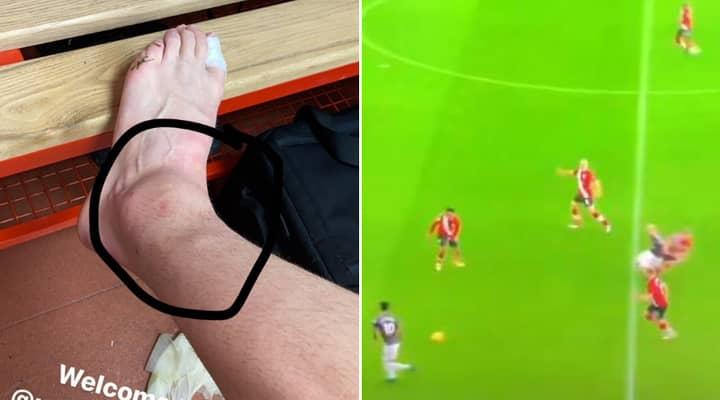 Donny Van De Beek Replies To 'Screaming' Critics With Injury Pic