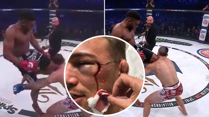 When Paul Daley Destroyed Brennan Ward With A Flying Knee That Ruined His Face
