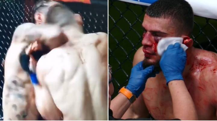 MMA Fighter's Ear Almost Ripped Off After Gruesome Injury On UFC Debut