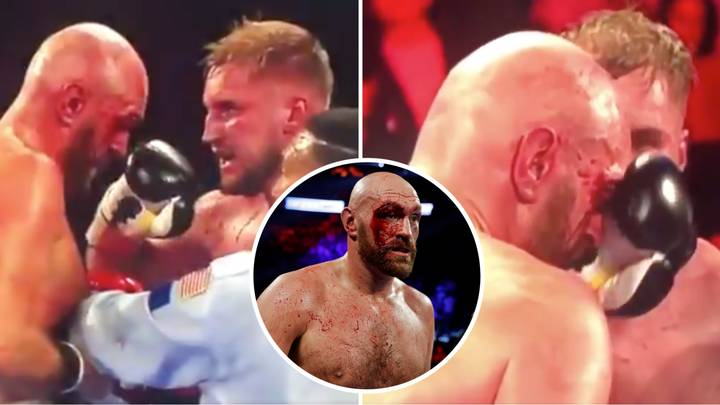 Tyson Fury's Clash With Deontay Wilder In February Could Be Postponed Because Of Gypsy King's Deep Cuts
