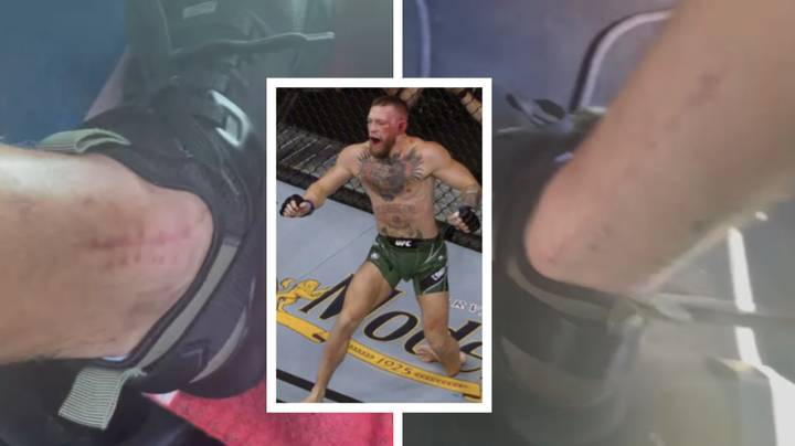 Conor McGregor Shows Off Massive Scars After Surgery On Snapped Leg