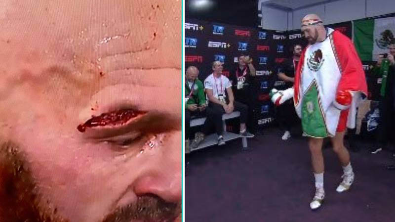Fury Vs Wallin Result: Tyson Fury Survives Early Scare To Beat Otto Wallin In Las Vegas