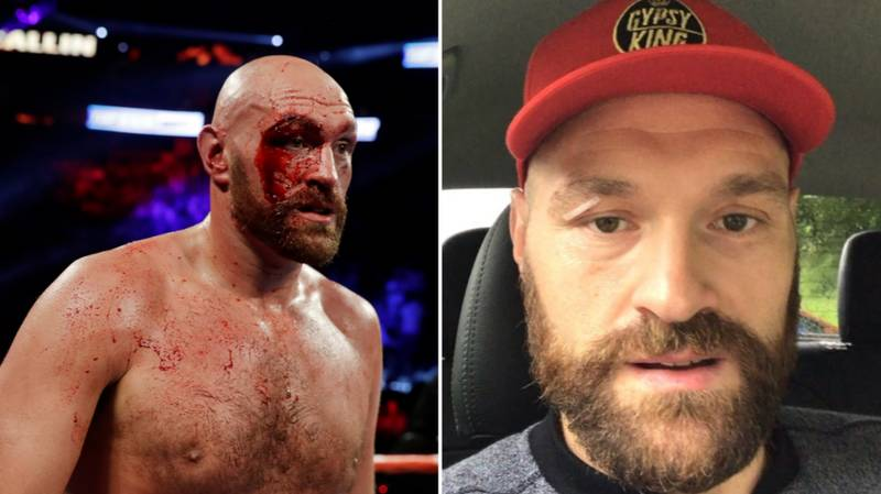 """Tyson Fury Says He Feels """"Fantastic"""" After Removing 48 Stitches From His Eye"""