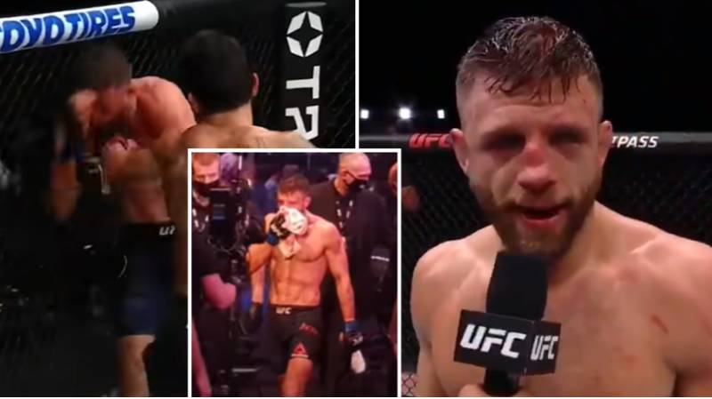 The Brutal Injuries Calvin Kattar Suffered In His Five-Round Beating To Max Holloway