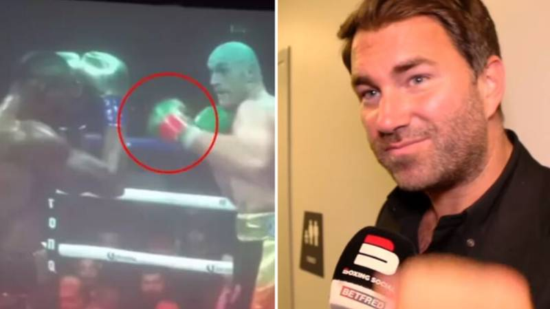 Eddie Hearn Responds To Tyson Fury Glove Tampering Conspiracy